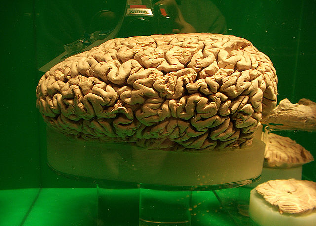 The brain of a whale preserved in a large glass jar.